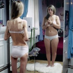 anorexi-bild